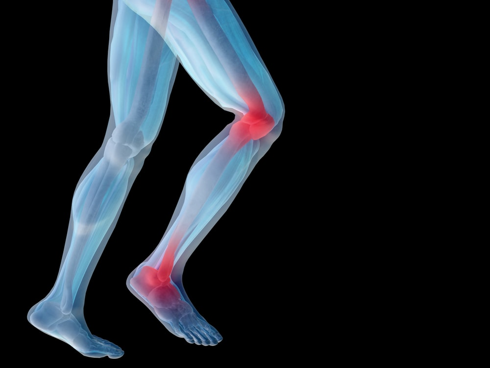 Knee pain - Symptoms and causes - Mayo Clinic